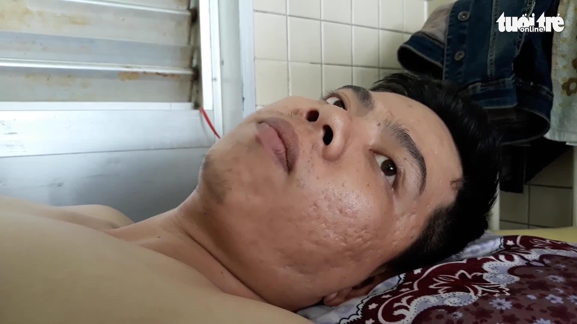 Image result for Bệnh nhân gãy đốt sống ngực, bệnh viện khoan nhầm cẳng chân